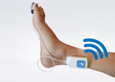 WiTOF foot sensor